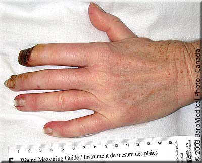 Raynaud's before HBO | BaroMedical Canada